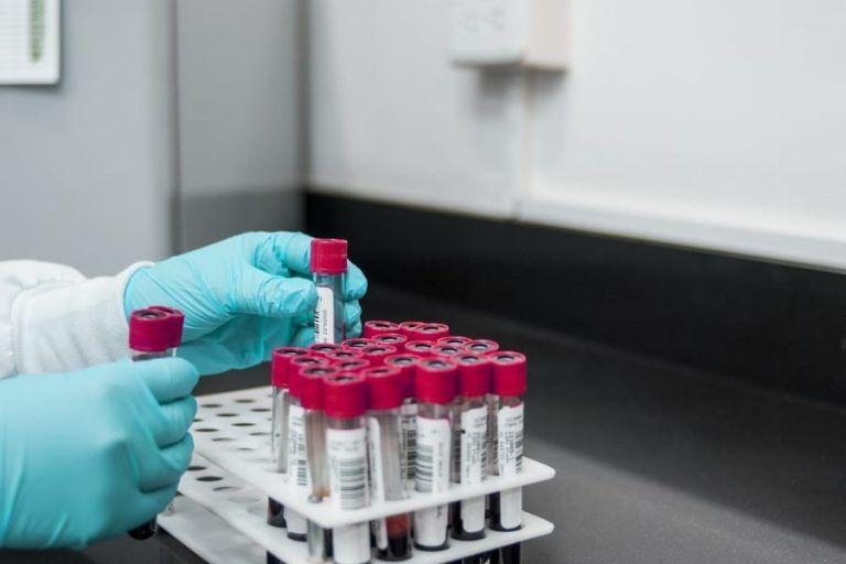 150 litres of plasma for the production of Immunoglobulin against SARS-CoV-2