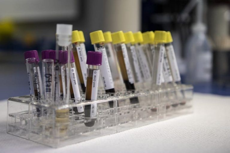 PZ Cormay będzie dystrybuował testy na koronawirusa