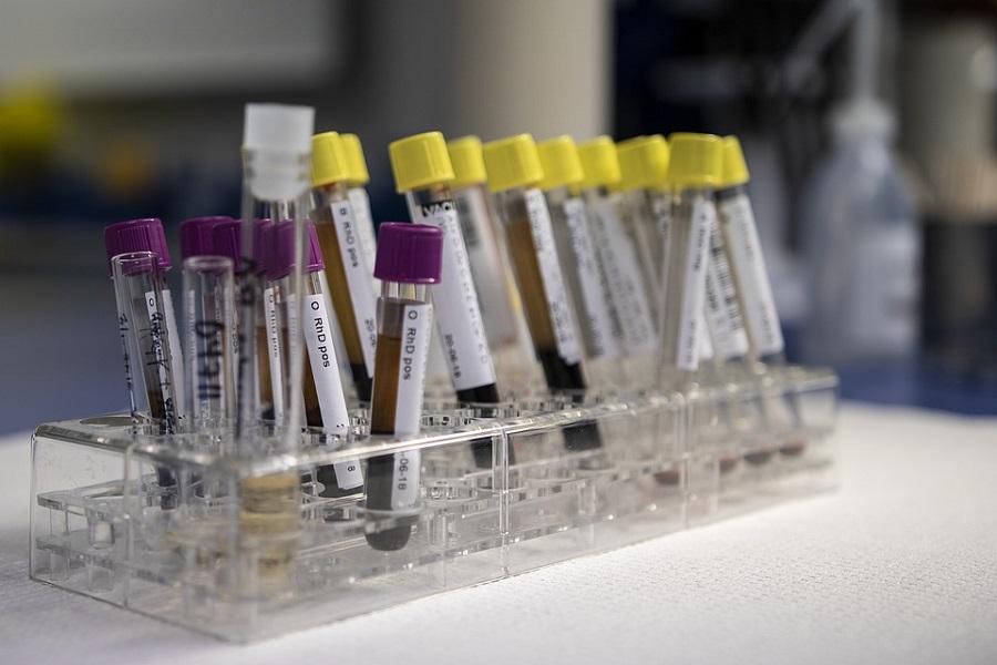 krew probki diagnostyka laboratorium